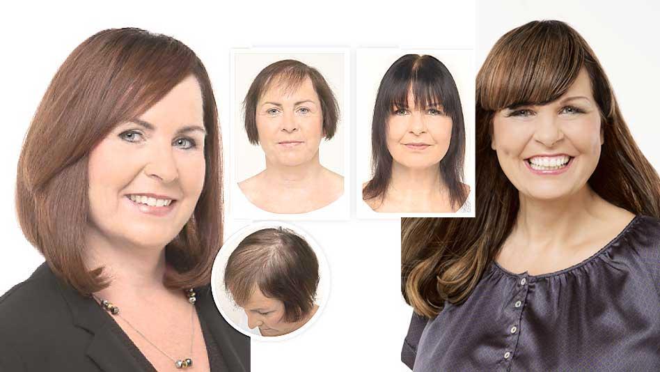 Apua hiusongelmiin